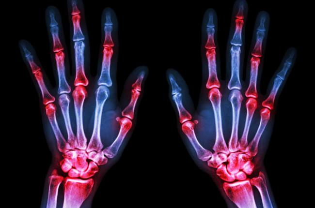 Acute Rheumatoid Arthritis Treatment