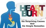 Heartburn Causes, Symptoms and Treatment