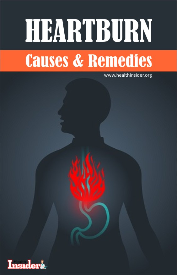 Home Remedies for Heartburn Relief