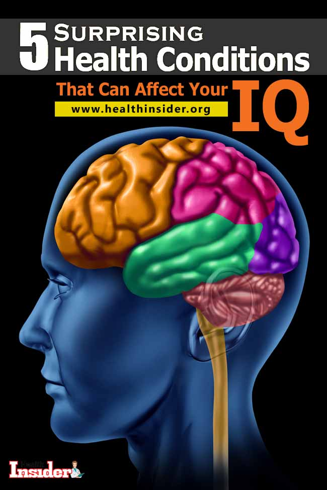 Here are 5 scary health conditions that can negative impact on your IQ. #intelligence