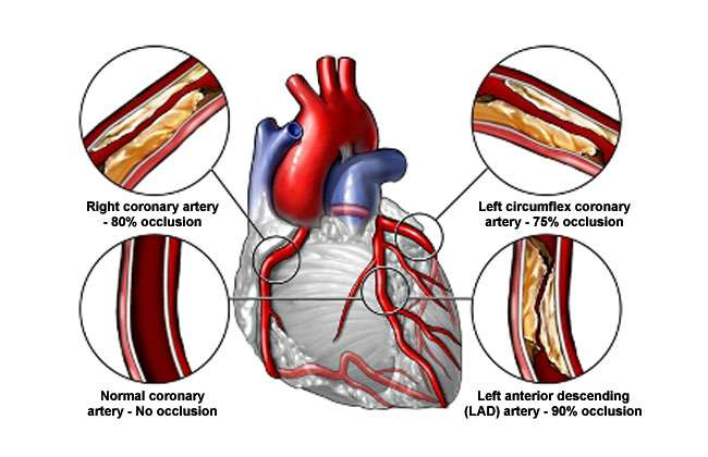 Heart Valve Replacement Recovery Complications