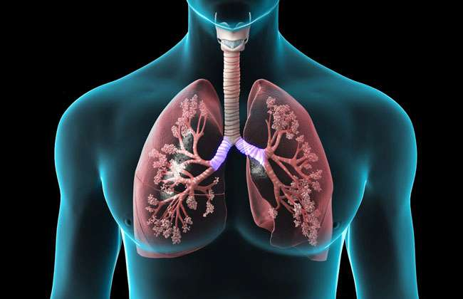 How Long Can You Live with Lung Cancer without Treatment