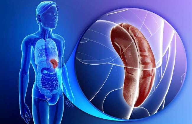 Enlarged Spleen and Back Pain