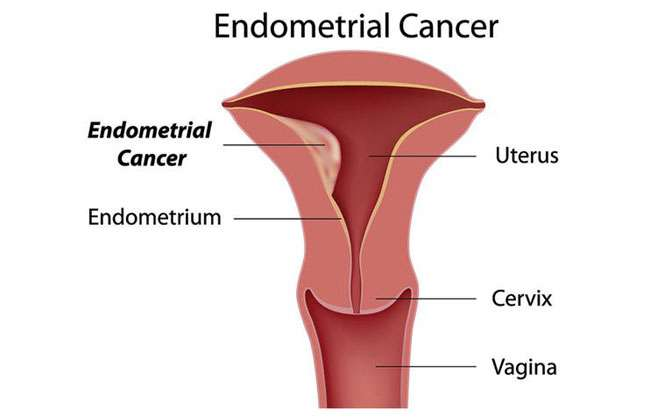 Endometrial Cancer Discharge