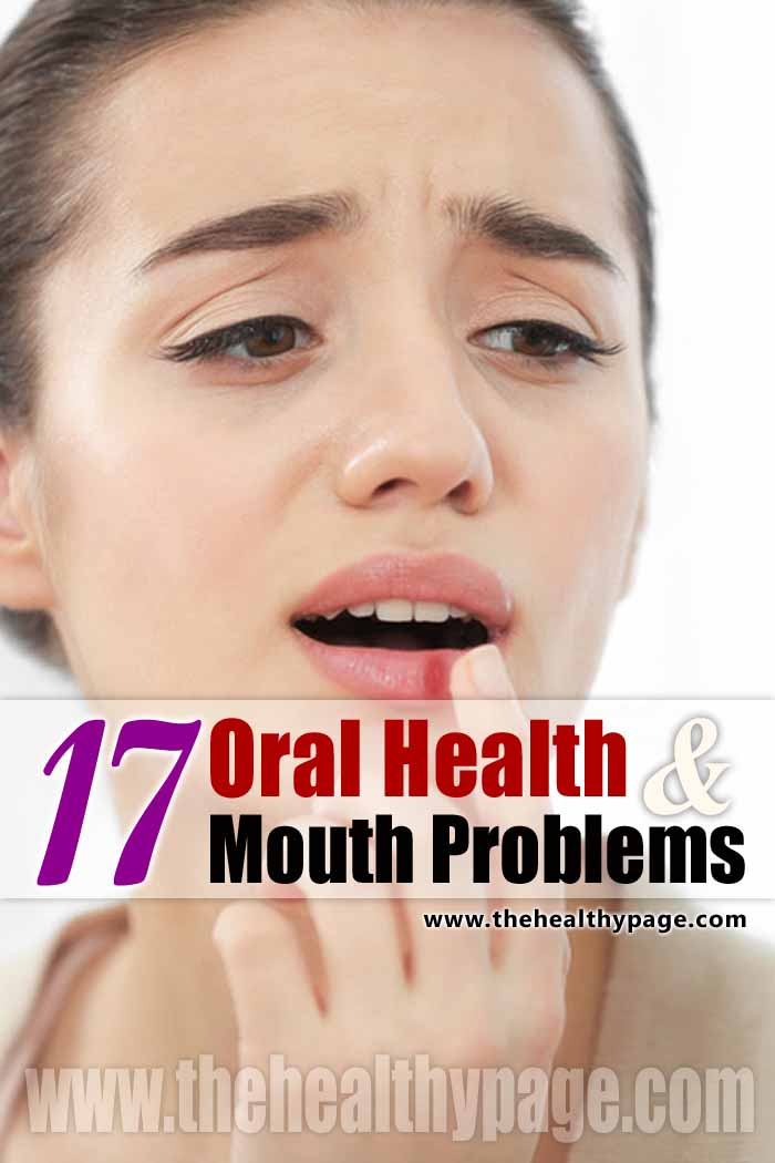17 Oral Health & Mouth Problems