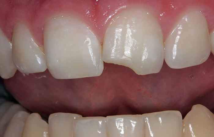 Chipped Teeth Mouth Problem