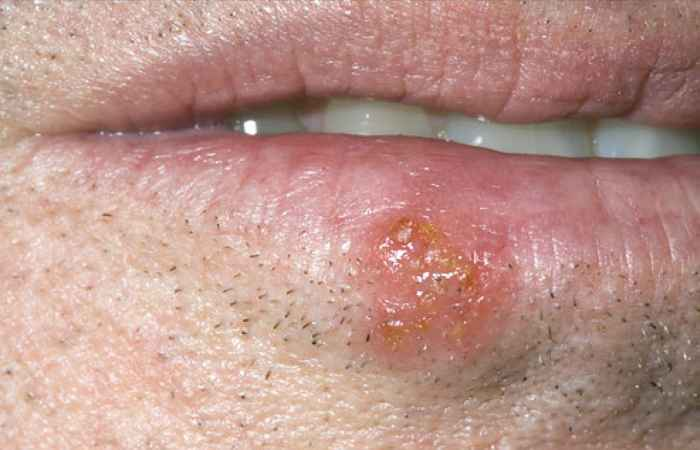 Cold Sores Mouth Problem