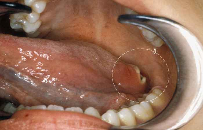 Oral Cancer Mouth Problem