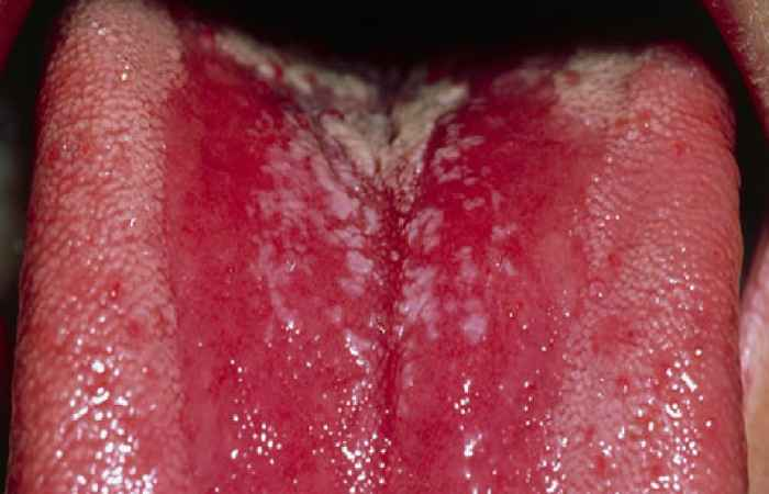 Thrush Mouth Problem