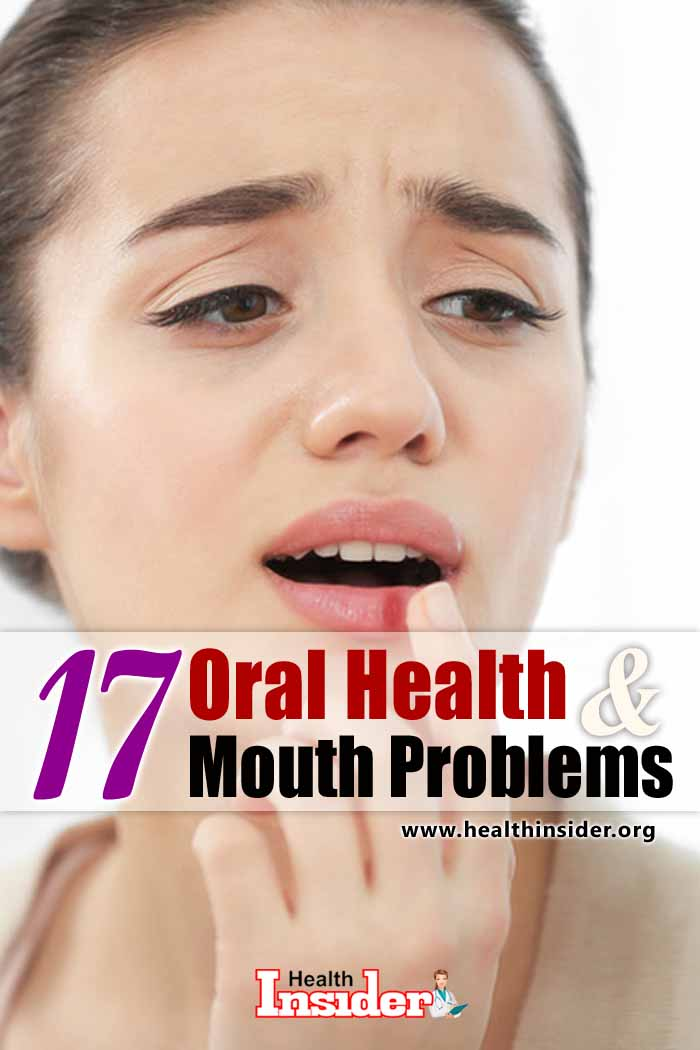 Sores, painful gums, bad breath -- what's going on in your mouth? Found out the most common mouth problems. #oralhealth #oralcare #mouthproblems