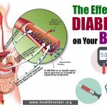 Diabetes Effective on Your Body