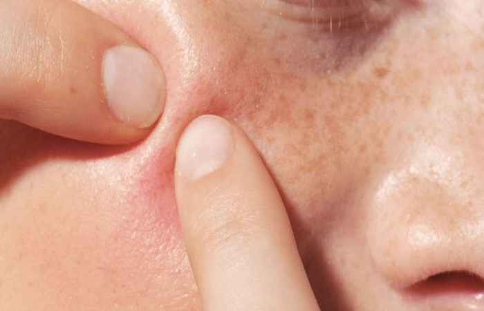 Lifestyle Affects Acne