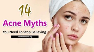 Most Acne Myths you need to stop believing